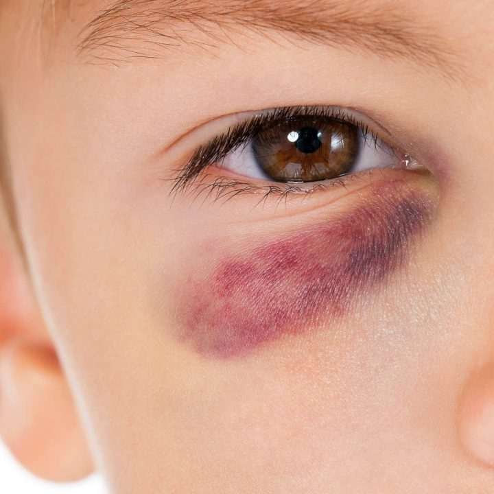 kid with eye bruise